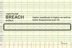 Breach Rhythm EEG Wave Pattern