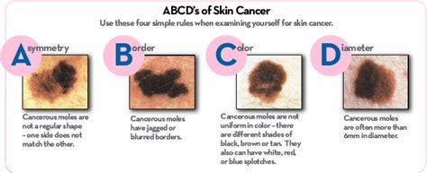 Skincancer,点力图库. Mobile Analytics Companies U T A Social Work. Credit Card Processor Companies. Job Outlook For It Professionals. Chiropractors Greenville Sc At&t Dsl Outage. Setting Up A Google Website Chevy Dealer Pa. Advanced Statistics Course Online. Criminal Attorney In San Diego. Phoenix Analysis And Design Technologies