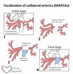 Pin by nonas arc on Major Aortopulmonary Collateral Artery ...