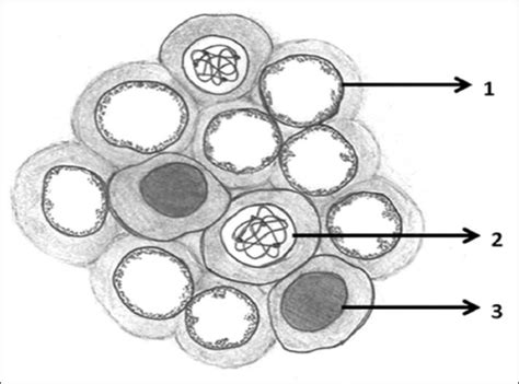 The Hand Drawn Illustration Of Orphan Annie-eye Nuclei