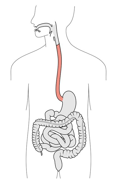 Esophagu Cancer Diagram by Esophagus