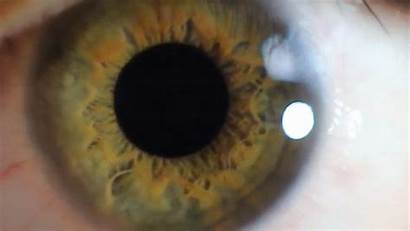 Close Pupil Eye Dilation