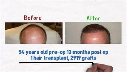 Hairline Fix Receding Tips