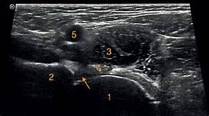 Normal Anatomical Structures Of The Anterior Aspect Of The