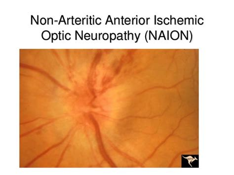Optic Neuritis And Oct In Multiple Sclerosis