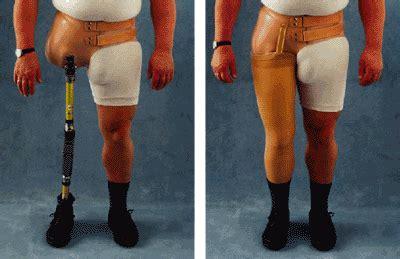 prothesen neubert orthopaedie technik gmbh  kg