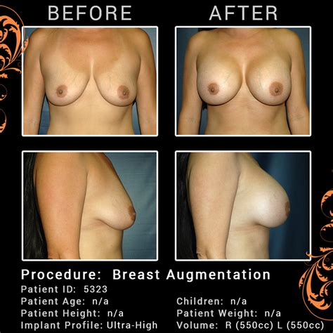Reconstructive surgery for breast cancer patients dr jpg 750x750