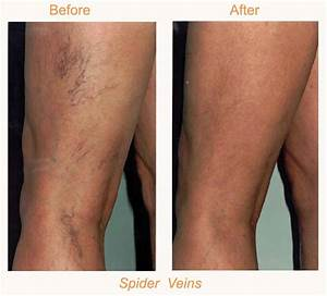 Sclerotherapy | BodyLase® Med Spa Raleigh & Cary NC