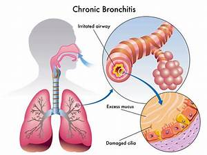 Symptoms Of Bronchitis  Diagnosis And Treatment