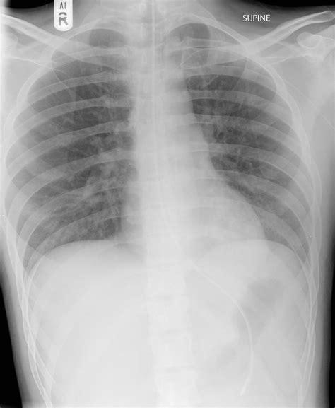Nasogastric Tube Normal Position
