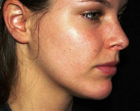 Skin Infections On Face Skin Image