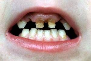 Children as young as three suffering from 'severe tooth ...