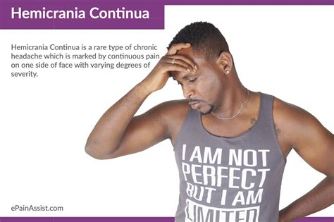 Hemicrania Continua Hc Treatment Causes Symptoms