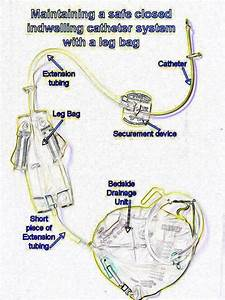 Switching Between Leg Bags And Night Bags