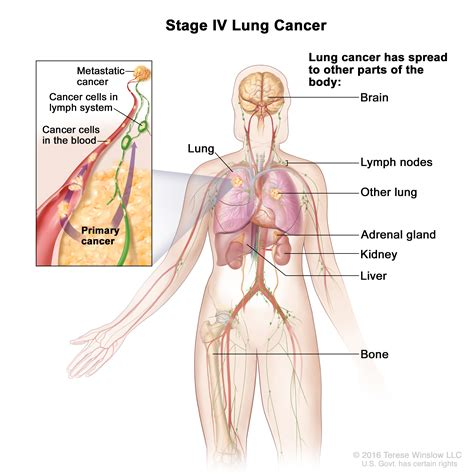 stage iv  small cell lung cancer patient siteman