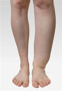 Best Compression Socks For Swelling » Compression Info