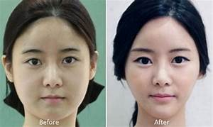81 photos of plastic surgery in Korea that will make your ...