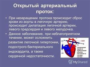 Препараты при сердечно-легочной недостаточности и гипертонии