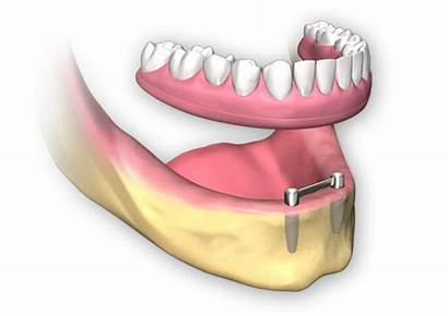 Dental Implants Arch Onto Bar Clips Directly