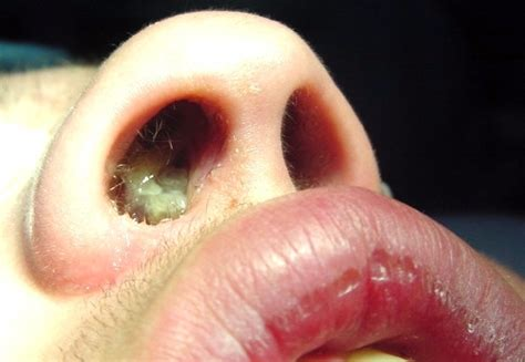 pictures  nasal polyps nasal polyposis