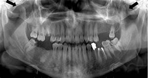 Panoramic Radiography  The Arrow Indicates Bilateral