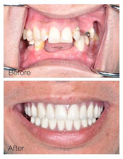 Dental Implants Vegas Las Nv Four Procedure