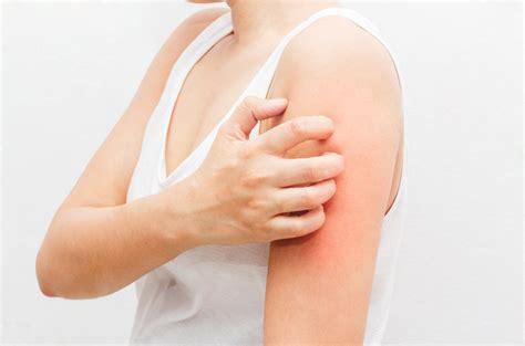Help My Undies Itch Cottonique Allergy Free Apparel