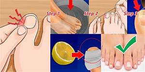 How To Remove An Ingrown Toenail At Home Without Any