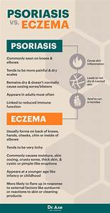 Psoriasis Symptoms & Risk Factors + 5 Natural Remedies