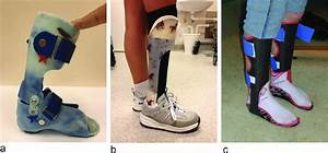 The Different Types Of Ankle