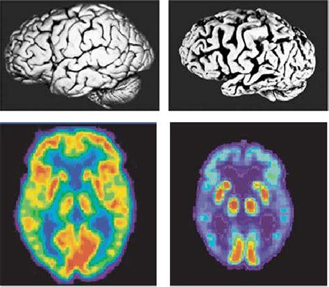 fitnophrenia    brain  exercise