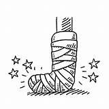 Leg Broken Drawing Injury Bandage Cast Clipart Vector Clip Illustration Illustrations Orthopedic Cartoons Drawn Sketch Injured Feet Res Arm Foot sketch template