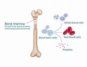 Acute Myeloid Leukemia  Aml  In Children And Teens