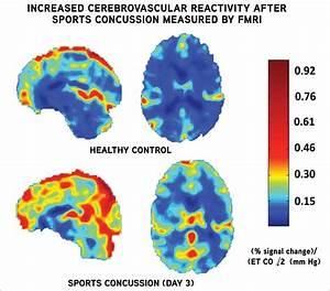 Concussions  Mild Traumatic Brain Injury  - Knee  U0026 Sports