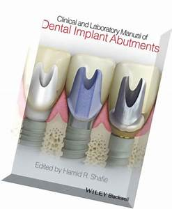 Download Clinical And Laboratory Manual Of Dental Implant