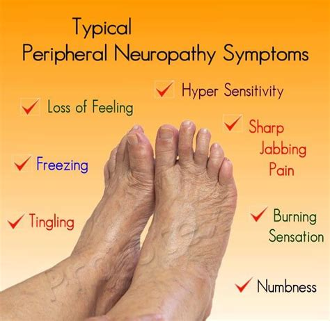 Peripheral Neuropathy in Feet Symptoms