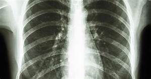 Diseases That Cause Nodules To Form On Lungs