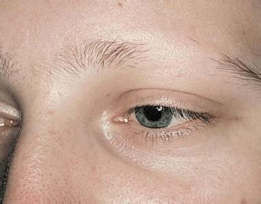 Eyebrows Falling Out, Causes, hair Loss, not growing Back