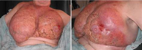 inflammatory  due  oleogranulomatous mastitis