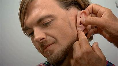 Botched Nature Ear Prosthetic Incredible Specialist Left