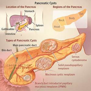 What Is Pancreatic Cyst