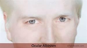 Ocular Albinism|Signs|Symptoms|Treatment: Glasses, Contact ...