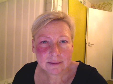 Opgezet, gezwollen, pafferig gezicht: gezichtsoedeem Mens