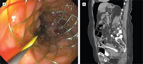 colonic stent perforation colorectal cancer jama