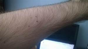 How Much Time Does It Take For Hair On Arm To Grow Back