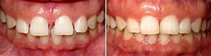Invisalign and Clear Braces | Hinsdale Dentistry