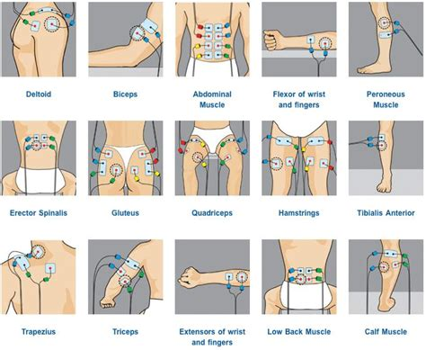 electrode placement guide - Google Search   TENS Machines
