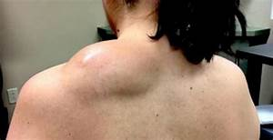 Pimple Doctor Takes on Her Biggest Job Yet – a HUGE Lipoma ...
