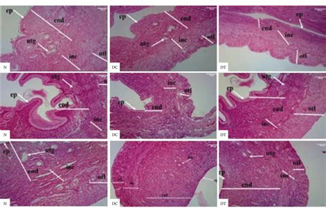 The representative uterine sections of the normal (N ...
