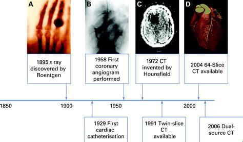 cardiac ct  ct coronary angiography technology  application heart